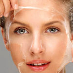 Overview of Chemical Peels